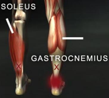 Popliteus Tendinitis With RehabSportsMed