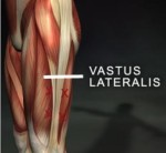vastils lateralis and it band pic